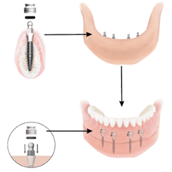 Mini dental implant inserted in mouth