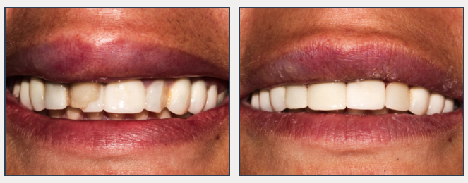 See our before and after photo gallery - Highpoint Dental